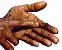 Arsenicosis1.jpg